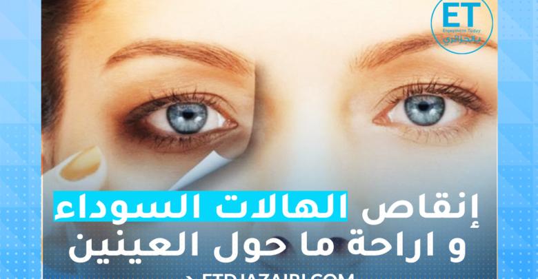 صورة إنقاص الهالات السوداء و اراحة ما حول العينين